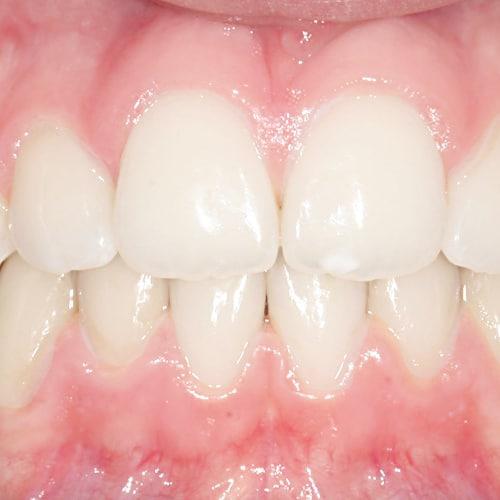 Cas clinique – Correction classe II squelettique et dentaire