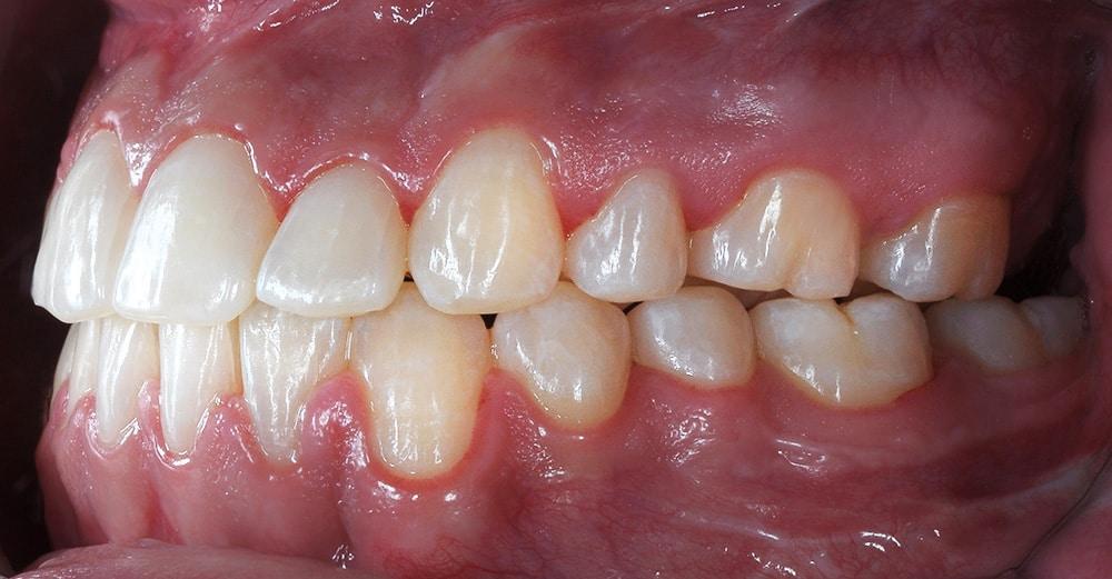 Cas clinique – Correction chirurgicale classe III squelettique et dentaire