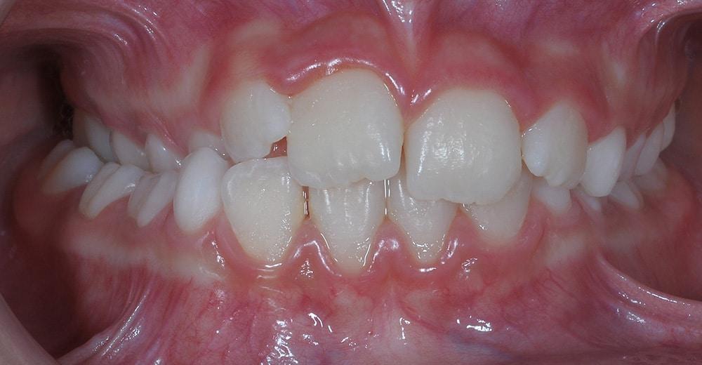 Cas clinique – Correction d'une occlusion croisée unilatérale